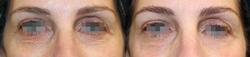 Lower Eyelids