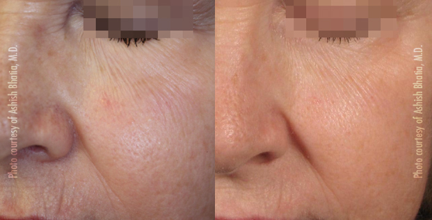 Revitalization + Pore Size Reduction