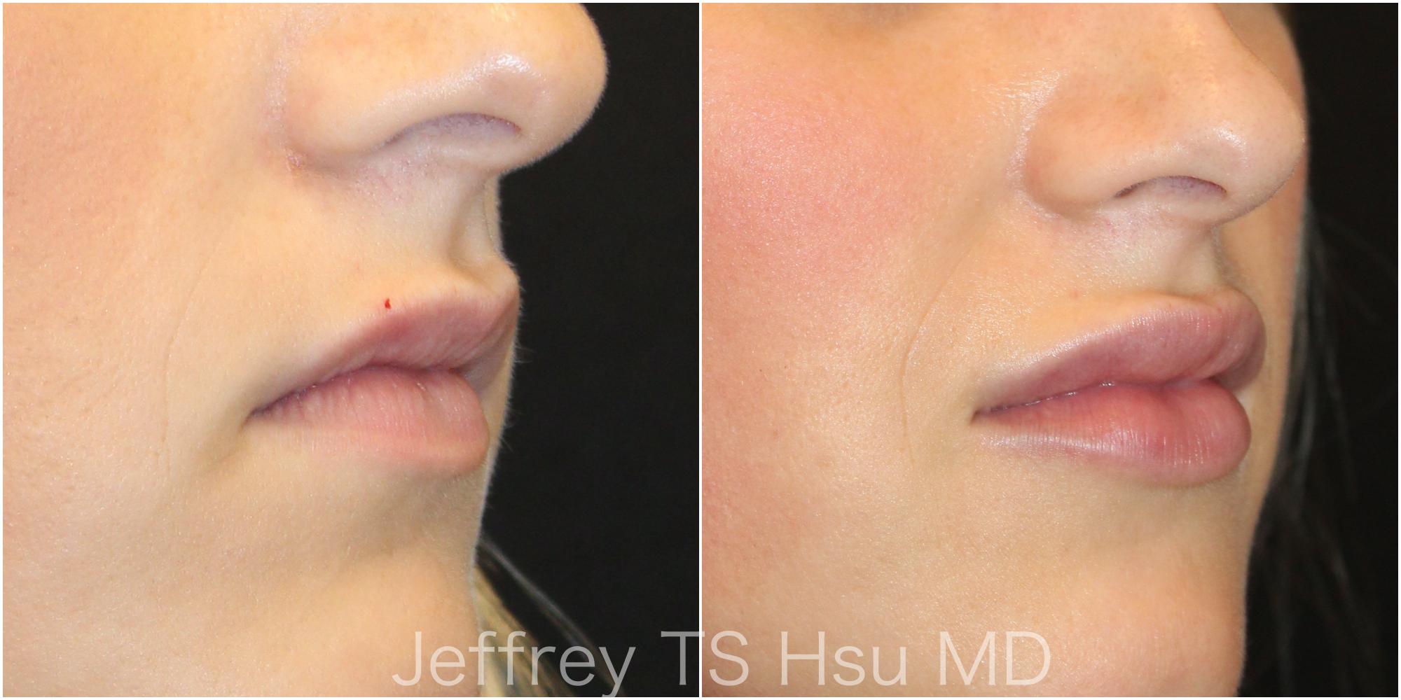 Lips2