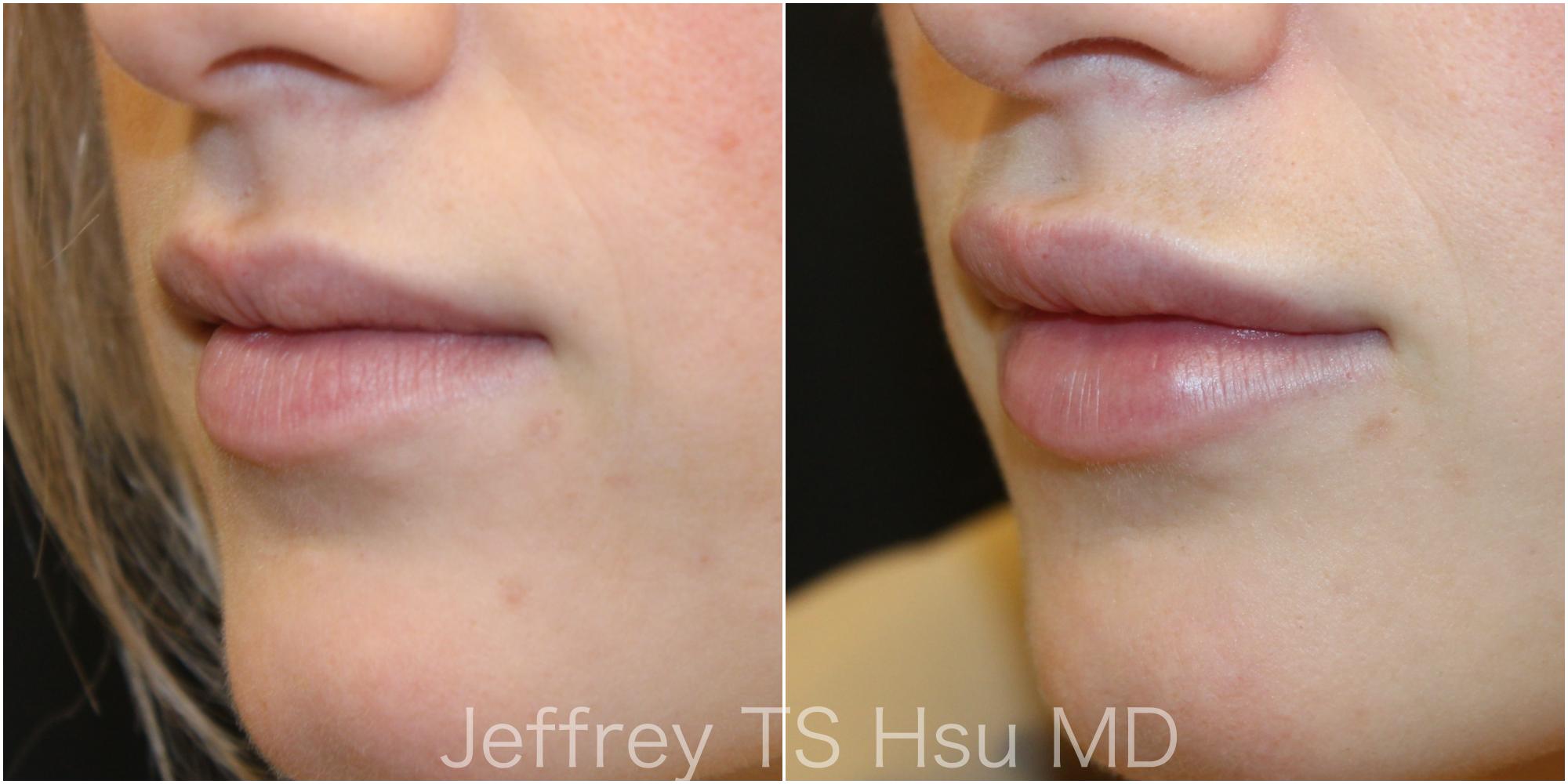 Lips3