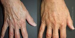 Hand Rejuvenation 3D