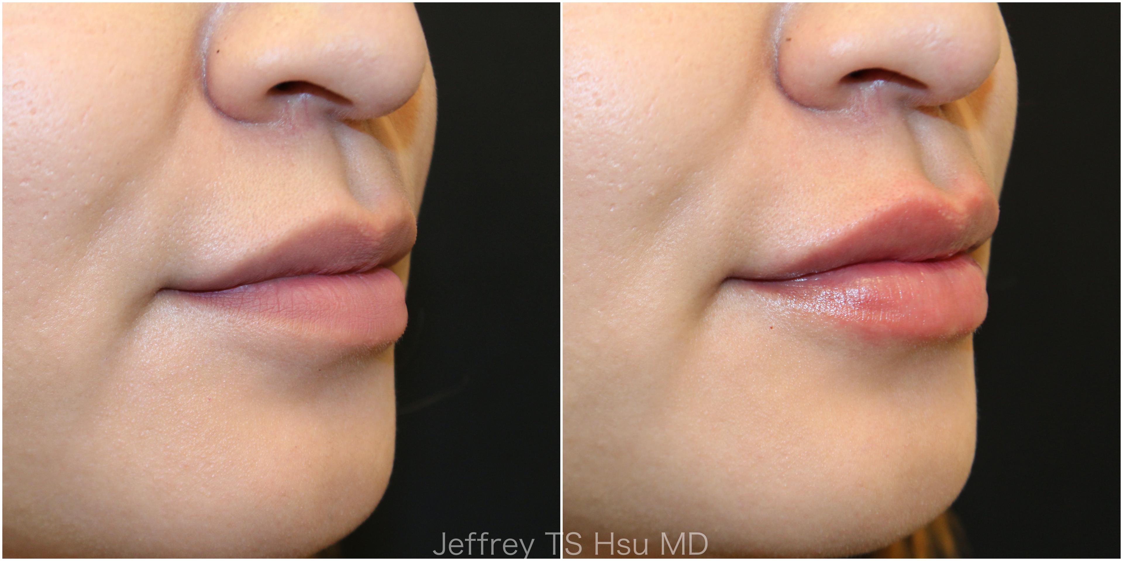 Lips9