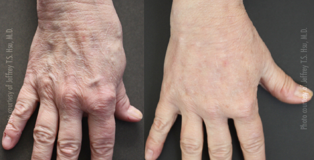 Hand Rejuvenation 3D