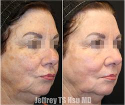 Full Face Rejuvenation