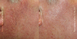 Facial Vein