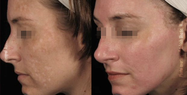 Acne Scars and Melasma