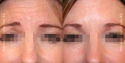 Neuromodulators/Botox