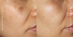 Pigmentation, Brown Spots