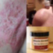 Psoriasis relief with Miracle Skin Relief Ointment