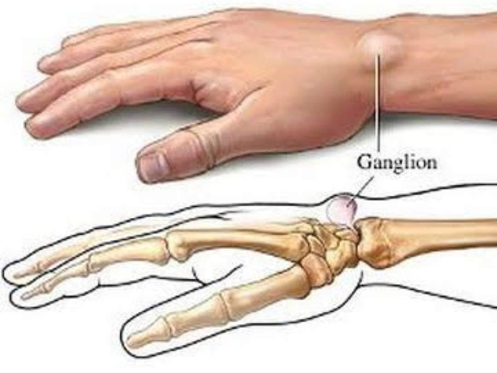 This pic depicts the animated image of ganglion cyst