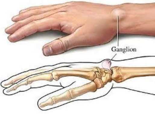 Treatment for Ganglion