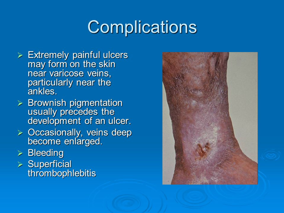 This picture depicts complications for Varicose Vein