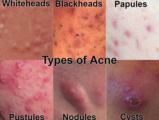 Acne ~ Homeopathic Treatment