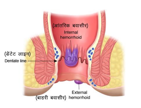 बवासीर (पाइल्स या हेमराहाइड) के लिए होम्योपैथी उपचार
