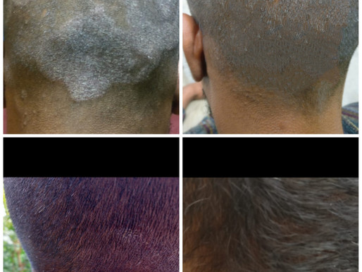 Homeopathic treatment for Seborrhoeic Dermatitis