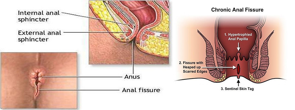 Anal Fissure animated image 1
