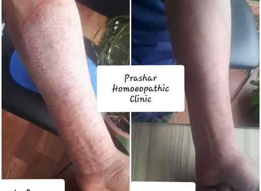 Eczema (Atopic Dermatitis) - Before and After