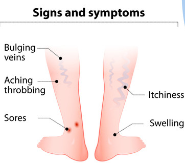 This picture depicts Sign and Symptoms for Varicose Vein