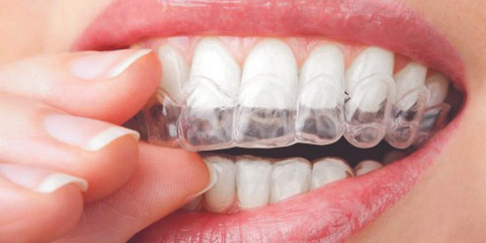 Traitement orthodontique par gouttières d'alignement