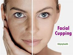 Facial Cupping Massage now available at Vibrant Life, LLC, located in Colby, KS.