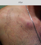 Laser Tattoo Removal After.png