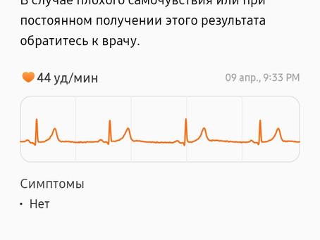 Измерить давление и ЭКГ теперь можно )))