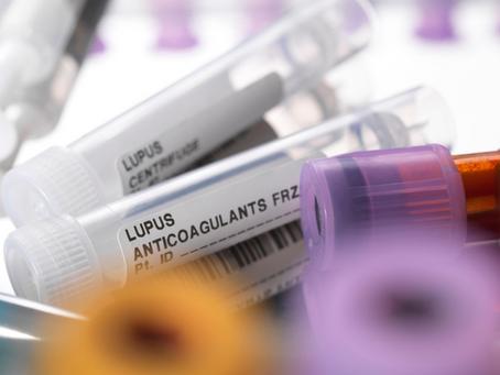 Como fechar o diagnóstico de Lúpus?