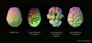 air pollution brain damage