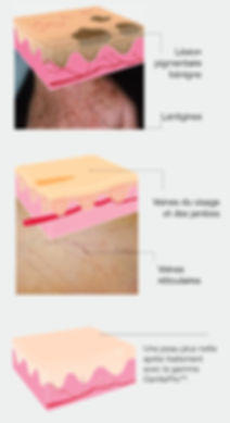 Laser Vasculaire & Pigmentaire Brest