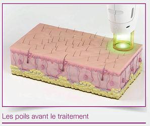 Epilation Laser Brest
