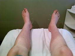 akupunktur fötter.jpg