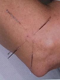 Akupunktur armbåge.jpg