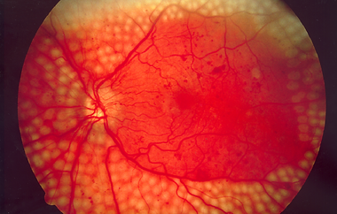 Pan-Retinal Photocoagulation