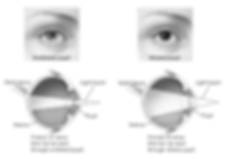 Dilating Your Pupils