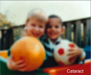 Vision of A Patient with Cataracts