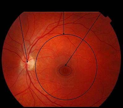 Retina Surgeon Malaysia