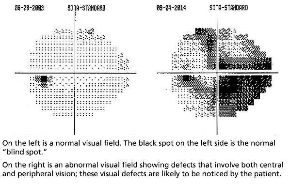 visual-fields-650b.jpg