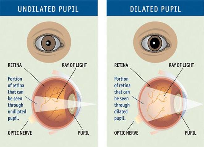 undilated_pupil.jpg