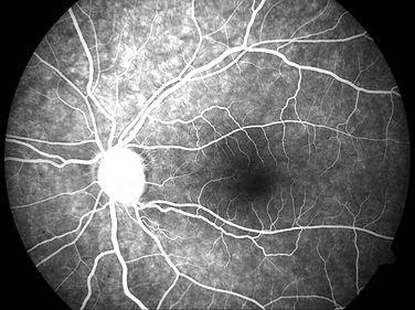 Fundus Fluorescein Angiogram