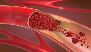 Blood Flow: The Root Cause of ED