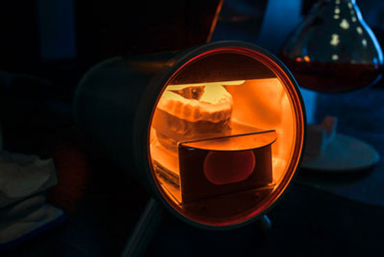 сплинт-лампа-IMG_1929.jpg