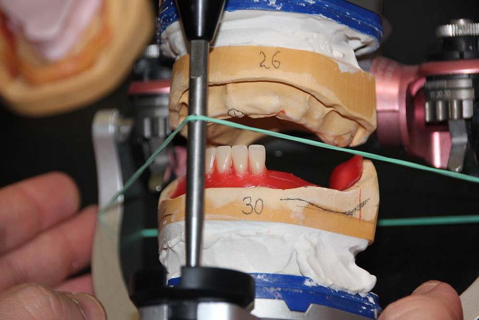 курс для стоматологов протезирование полными съемными протезами виталий носов