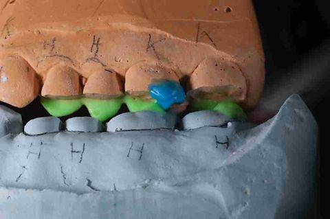 курс для зубного техника. Виталий Носов Восковое моделирование. Часть 2 Реорганизация неприемлемой окклюзии