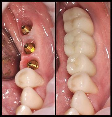 Курс для хирургов стоматологов от Артавазда Зограбян, Устранение рецессии десны. Тоннельная техника и корональное смещение трапециевидного лоскута
