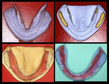 полные съемны протезы рамибалабановский, курсы для стоматологов