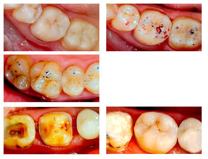курсы для стоматолога по восстановлению зубов композитными материалами