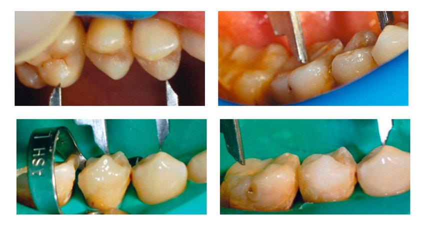 практический курс для врача-стоматолога реставрации жевательных зубов