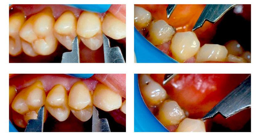 курсы для стоматологов по реставрациям
