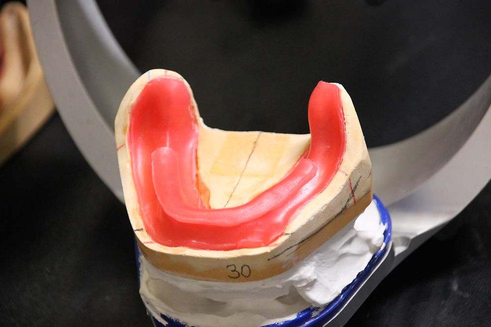 курс с пациентом протезирование полными съемными протезами