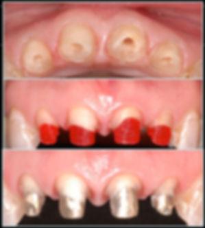 протокол препарирование зубов под керамику и виниры